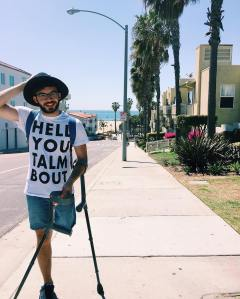 Young man with one above-the-knee amputation on his left leg. He is balancing two crutches with his left arm. He is wearing denim shorts, that, glasses and a beard. Behind him is a neighborhood by the beach with a row of palm trees.