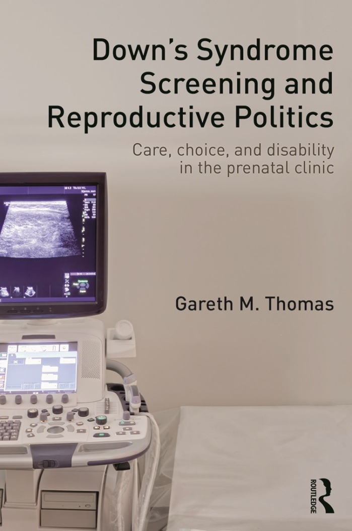 "Book jacket for ""Down's Syndrome Screening and Reproductive Politics: Care, Choice, and Disability in the Prenatal Clinic: Care, choice, disability in the prenatal clinic."" The title is in black text against a white background. There is an ultrasound machine with a monitor showing something indistinguishable on the left-side of the image. Next to the ultrasound equipment is an exam table. The author's name, ""Gareth M. Thomas"" is in black text below the title."